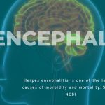 The Dangers of Being Careless on Herpes Encephalitis