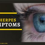 Answered: Your Most Burning Questions About Herpetic Whitlow