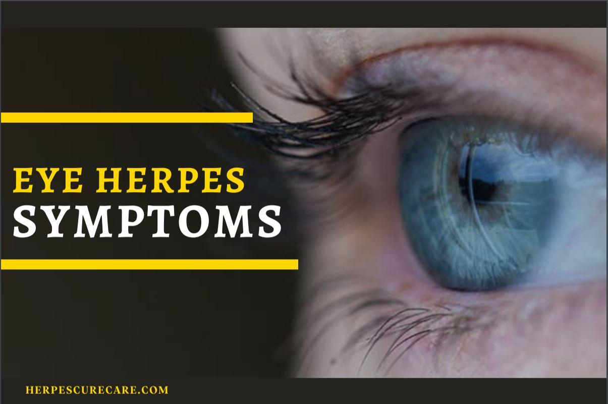 Eye Herpes Symptoms